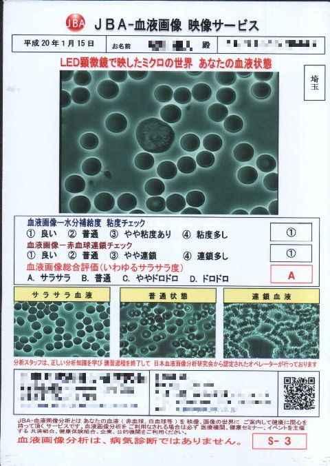 blood02.jpg